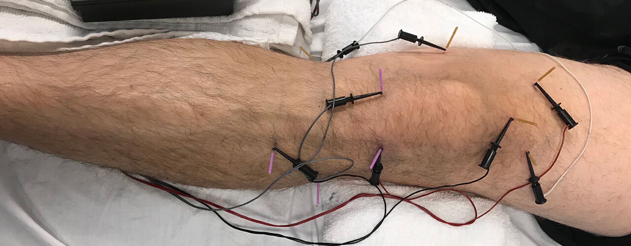 Electric Dry Needling Fort Worth & Plano, TX